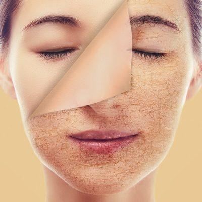 Chemische Peelings – Die sanften Weichmacher für Ihre Haut